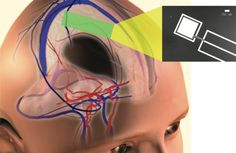 Researchers turn to spinal fluid to power human brain implants. Who wants to be a robot?