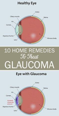 10 Effective Home Remedies To Treat Glaucoma