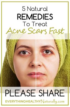 health info acne ffasp