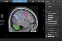 This interactive collection of images of brain scans is one of the online supplements to NOVA's How Does the Brain Work? program. The collection of images, titled Mapping the Brain, allows you to choose from six imaging methods and choose the part(s) of the brain that you want to see highlighted in the scans.