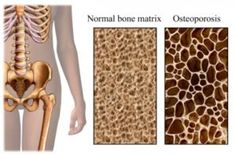 Joint Pain Remedies Here's an osteoporosis cure you definitely must consider, along with other natural remedies for osteoporosis and bone loss that are currently giving astonishing results for many long time sufferers. Osteoporosis Exercises, Natural Headache Remedies, Natural Home Remedies, Holistic Remedies, Essential Oils Sinus, Hip Fracture, Supplements For Anxiety, Tips