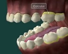 See this Instagram video by @dentistry.world • 1,415 likes