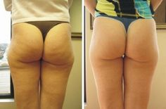 12 Easy Ways to Get Rid Of Cellulite from Thighs Buttocks Hips and Lower Stomach