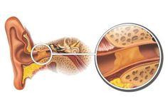 Éliminer les bouchons de cérumen de façon naturelle - Améliore ta Santé