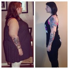 Gastric bypass before and after