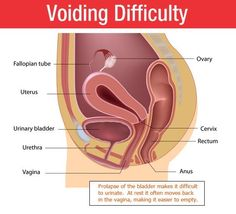 RG Hospitals is a leading Urology hospitals in Delhi, India. We are providing the best Urine Voiding Difficulty Treatment in India by the latest techniques at the lowest price.