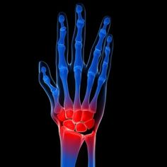 Best Treatment Options For Arthritis Wrist Pain
