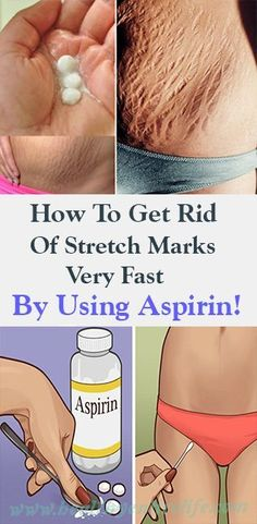 How To Get Rid Of Stretch Marks Very Fast By Using Aspirin!