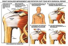 Employees Engaged in Overhead or Above Shoulder Level Work commonly suffer Rotator Cuff Injury on the job.  Symptoms include pain, inability to lift, and loss of range of motion. Diagnosed by MRI. Treatment includes physical therapy, injection and surgery.  Lengthy recovery following surgery. Disability ranges permanent partial ot permanent total. The Law Office of James M. Hoffmann.  Missouri Workers Compensation Lawyer.