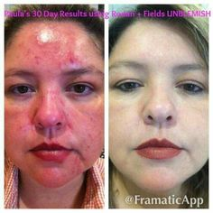 Unblemish was just named the #1 acne treatment in the US!! 60 day money back guarantee!! Https://mistyr.myrandf.com
