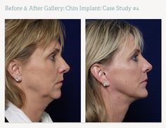 Chin Implant | This procedure, also know as the Grecian Urn neck lift, involves removing excess skin in the neck and tightening the underlying muscle. **To see more before and after shots please visit our website www.mariettafacialplastics.com