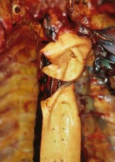 An aortic laceration sustained in a sudden deceleration/blunt impact incident (motor vehicle collision). Forensic Science, Medical Science, Medical Photography, Medical Pictures, Surgical Tech, Forensic Anthropology, Motor Vehicle, Crazy Things, Medical Information