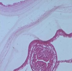 Tissue section of a hydatid cyst showing daughter cyst