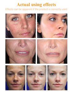 LANBENA Vitamin C Serum 40ml Whitening Facial Essence Remover. – lanbena.official