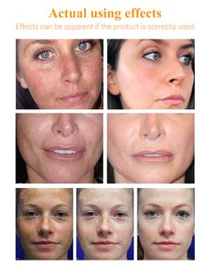 LANBENA Vitamin C Serum Whitening Facial Essence Remover. Skin Care Cream, Skin Cream, Vitamin C Serum, Skin Brightening, Keratin, Freckles, Dark Skin, Whitening, Sensitive Skin