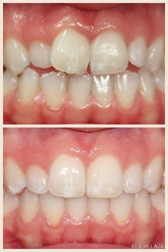 67 Best Before And After Braces Images After Braces Orthodontics