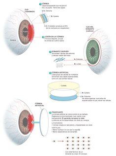 Trasplante de córnea artificial