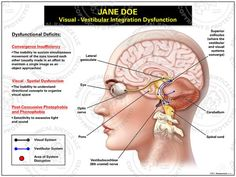 Visual-vestibular integration dysfunction is a sensory disorder in which the brain cannot properly process and combine information from the ...