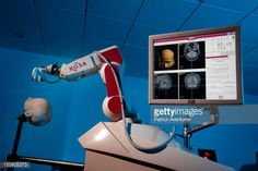 UAB's ROSA robot guides new epilepsy procedure | A new surgical robot helps UAB physicians add a new technique for preparing for epilepsy surgery. [The Future of Medicine: http://futuristicnews.com/tag/future-medicine/ Robotics: http://futuristicnews.com/category/future-robots/]