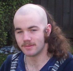 Another example of the rare and elusive skullet. #BadHair #Funny #Skullet