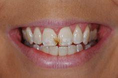 Tẩy trắng răng khi nào