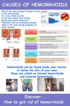 Home remedies to get rid of hemorrhoids