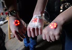 Biohackers implant computers, earbuds and antennas in their bodies - MarketWatch