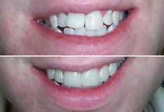 #OrthoSnap Treatment Results | #TeethStraighteningWithoutBraces | #OrthoSnapNewYork | Dr. Irina Feldbein | #Manhattan and #Brooklyn, #NewYork | 1.844.678.4676 | http://www.orthosnapny.com/