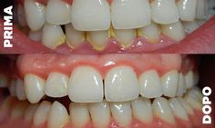 The dentist getting wisdom teeth pulled,cure tooth decay dental caries symptoms,dhs dental practice basic teeth cleaning cost. Gum Health, Oral Health, Dental Health, Dental Care, Smile Dental, Smile Teeth, Oil Pulling, Gum Disease Treatment, Plaque Removal