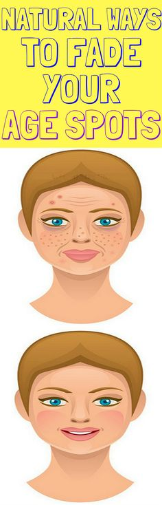 In this article we will present you natural remedies which will help to get rid of the age spots.