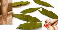 Natural Mixture From Varicose-Pain to Migraine, Varicose Veins - Kopfschmerzen Varicose Vein Remedy, Varicose Veins, Migraine, Home Remedies, Natural Remedies, Natural Treatments, Spa Treatments, Herbal Remedies, Natural Colon Cleanse
