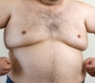 "How to lose ""man boobs"" and chest fat: the definitive guide"