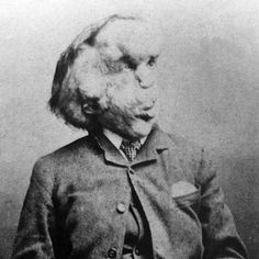 John Hurt as Joseph Merrick in The Elephant Man | 23 Incredible Photos Of Actors Vs. The Historical Figures They Played