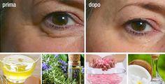 8 rimedi naturali contro le rughe e le linee di espressione | Rimedio Naturale