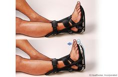 Night brace for Achilles tendon problems plantar fasciitis Achilles Tendonitis Treatment, Achilles Pain, Tendon Tear, Plantar Fasciitis Remedies, Ankle Surgery, Leg Injury, Insomnia Cures, Sciatic Pain, Surgery Recovery