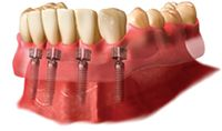 Implant Supported Dentures in Surprise, AZ  http://suncitydentalimplant.com/implant-supported-dentures/
