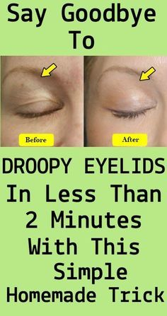 Say Goodbye To Droopy Eyelids In Less Than 2 Minutes With This Simple Homemade Trick Drooping Eyelids, Saggy Eyelids, Makeup For Droopy Eyelids, Hooded Eyelids, Puffy Eyelids Remedy, Droopy Eyes, Sagging Skin, Natural Beauty Tips, Diy Beauty