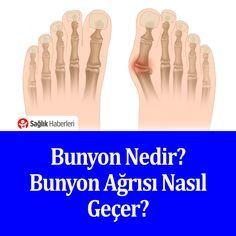 Bunyon nedir? Bunyon ağrısı nasıl geçer? #bunyon #sağlık #sağlıkhaberleri #hastalık #halluksvalgus
