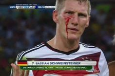 108th minute: A contested header leaves Schweinsteiger bloody. | Germany Wins The 2014 World Cup After A Goal By Mario Götze