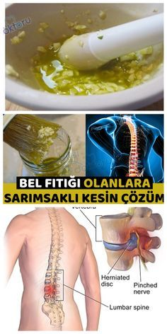 BEL FITIĞI İÇİN DOĞAL TEDAVİ YÖNTEMİ Natural Health Remedies, Herbal Remedies, Healthy Menu, Healthy Life, Plant Breeding, Elderly Care, Drying Herbs, Natural Treatments, Diy For Teens