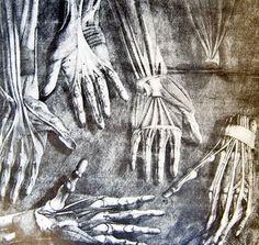 [ Jacques Fabian Gautier d'Agoty - anatomy Hands ]