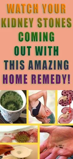 WATCH YOUR KIDNEY STONES COMING OUT WITH THIS AMAZING HOME REMEDY! #health #diy #beauty