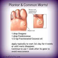 """Oregano is the perfect oil to get rid of warts! Be careful when using Oregano. You'll need to use a carrier oil around wart (so the oregano does not start hurting the """"good"""" skin around wart). I have found that a Q-tip is a great applicator of the Oregano, Frankincense and coconut oil and then cover the wart with a band-aid. The wart has always just fallen off! Have you used essential oils to remove warts? www.onedoterracommunity.com https://www.facebook.com/#!/OneDoterraCommunity"""