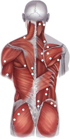 Localization of the typical pain of trigger points in fibromyalgia (muscle pain) in osteochondrosis of the thoracic spine.