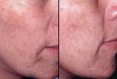 Chemical peels are among the oldest and most trusted cosmetic procedures in the world, performed in ancient Egypt, Greece, and now the Glycolic Acid Peel treatment is available in NYC to help people achieve smoother, more beautiful skin