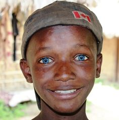 African Boy from Sierra Leone with Lovely Blue Eyes Black With Blue Eyes, People With Blue Eyes, Black People, Blue Green, Green Eyes, Black Guys, Black Is Beautiful, Beautiful Eyes, Beautiful People