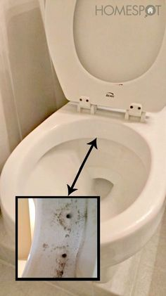 What Are the Causes of Mold in a Toilet Bowl? | Toilet bowl, Toilet ...