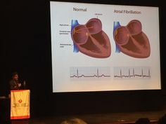 Dr. Nick Skipitaris from @MountSinaiNYC explains atrial fibrillation #NYCGoesRed