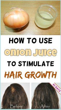 Can Onion Juice Stop Hair Loss? #hairloss #oniontreatman Natural Hair Care, Natural Hair Styles, Natural Shampoo, Onion Juice For Hair, Stop Hair Loss, Hair Breakage, Healthy Hair Growth, Hair Remedies, Acne Remedies