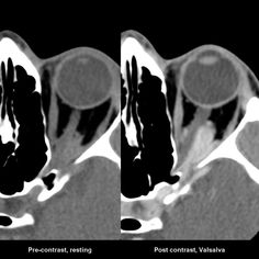 Orbital venous varix (OVV) is an uncommon vascular malformation which is composed of enlarged single or multiple tubular venous channels with direct communication to the systemic venous system. If the diagnosis is suspected contrast CT should be performed both at rest and with a Valsalva manoeuvre, as in some instances no abnormality is visible on routine imaging, and change in size is helpful in distinguishing this entity from other vascular lesions of the orbit.